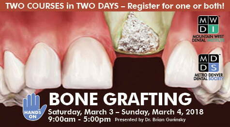 MDDS Presdents: HANDS-ON Bone Grafting