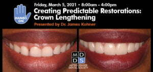 hands on crown lengthening course